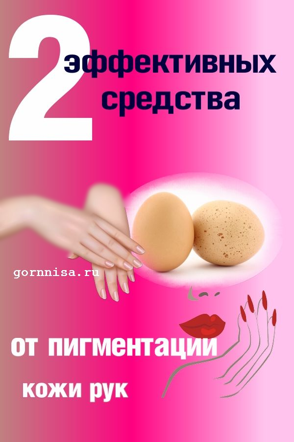 Уход за руками. 2 эффективных средства от пигментации рук https://gornnisa.ru/
