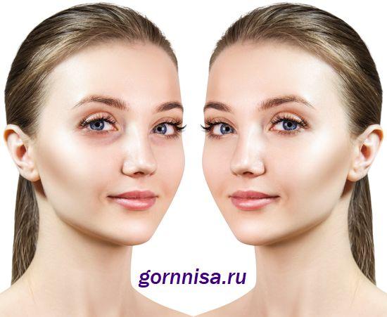 До и после применения домашней маски https://gornnisa.ru/