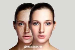 Природная маска от пигментации кожи